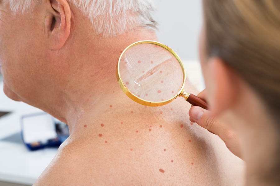 Early Signs Of Melanoma Age Spot Or Skin Cancer